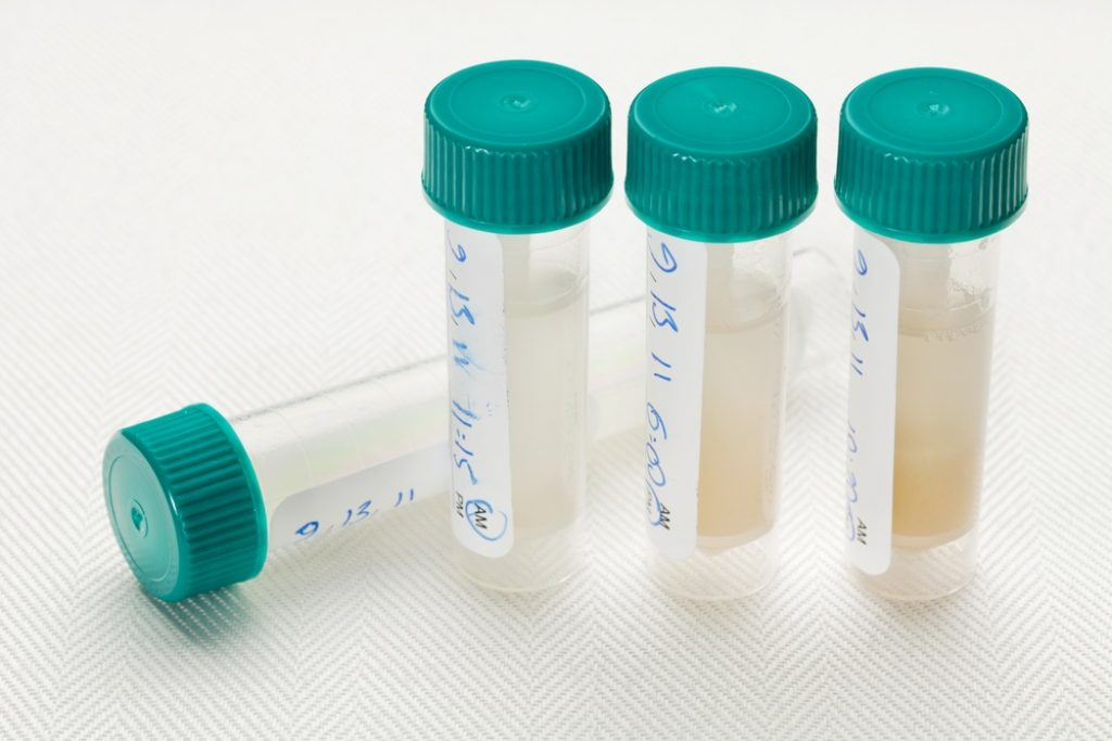 How To Pass A Mouth Swab Drug Test: Detection Times And